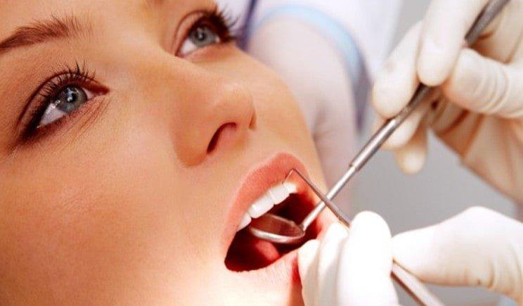 Addio alla carie ai denti grazie al nuovo smalto al fluoro
